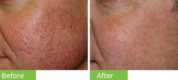 best Laser red vein removal dublin city centre